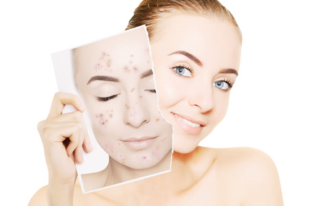Photo pour gorgeous woman with perfect skin releases her face from pimples - image libre de droit