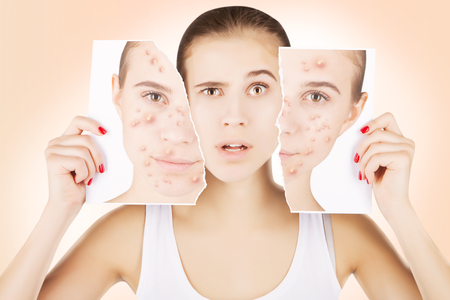 Photo pour young caucasian blond model fights with pimples - image libre de droit
