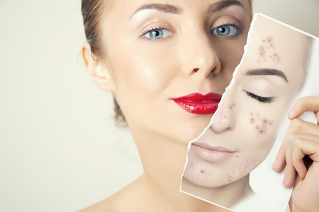 Photo for young woman face portrait with photo of her old skin - Royalty Free Image