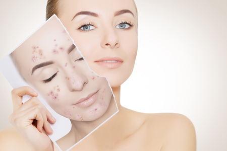 Photo for closeup portrait of woman with clean skin holding portrait with pimpled skin - Royalty Free Image