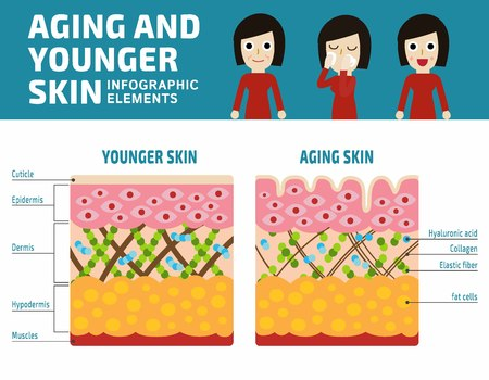 Illustration pour Younger skin and aging skin Infographic elements.Elastin and collagen flat vector illustration.Banner younger skin and aging skin showing thedecrease in collagen and broken elastin in older skin - image libre de droit