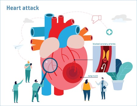 Illustrazione per Heart attack infographic.Atherosclerosis medical banner.Healthcare concept.Miniature doctor nurse team andobese patient vector illustration.Blood vessel section with fatty deposit accumulation - Immagini Royalty Free