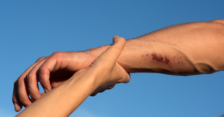 Foto de Two arms on blue sky. Hand female holding male wrist with bloody wounds and veins on skin. Support, rescue and help concept. - Imagen libre de derechos