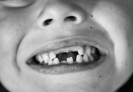 Photo pour dentistry. Child with missing teeth - image libre de droit