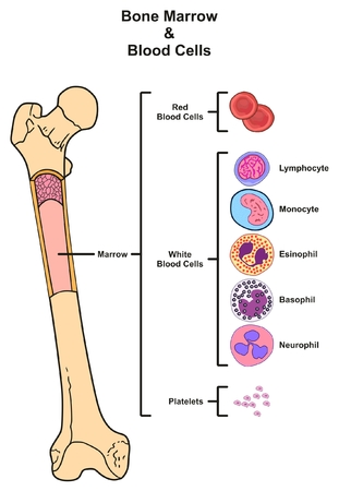 Illustration pour Bone Marrow infographic diagram including femur reproduction of red white blood cells platelets lymphocyte monocyte esinophill basophill neurophill for medical science education - image libre de droit