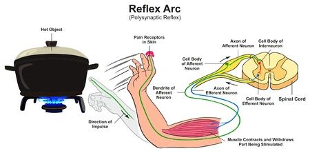 Ilustración de Reflex Arc infographic diagram with example of polysynaptic reflex human hand touching hot object pain receptors and direction of impulse for medical science education - Imagen libre de derechos