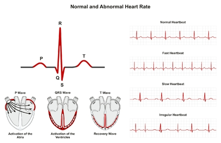 Ilustración de Normal and Abnormal Heart Rate infographic diagram including activation of atria ventricle and recovery wave also chart of normal fast slow irregular heartbeats for medical science education and health care - Imagen libre de derechos