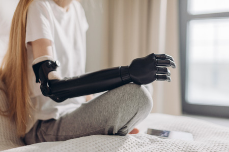 Foto de close up cropped photo. focus on the iron robotic arm.prosthetic amputee rehabilitation. - Imagen libre de derechos