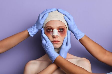Photo pour plastic surgeon treating facial injuries. close up portrait, isolated blue background, reconstruction of face after insidents, treating defects - image libre de droit