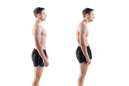 Photo for Man with impaired posture position defect scoliosis and ideal bearing - Royalty Free Image