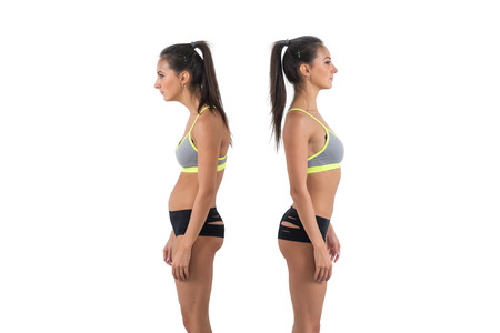 Photo for Woman with impaired posture position defect scoliosis and ideal bearing. - Royalty Free Image