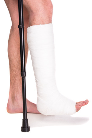 Foto de Close-up patient with broken leg in cast and bandage. - Imagen libre de derechos