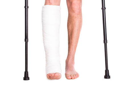 Photo for Close-up patient with broken leg in cast and bandage. - Royalty Free Image