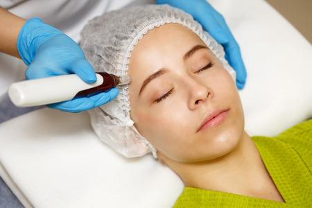 Foto de Hardware cosmetology. Mesotherapy. Dermapen. Treatment of forehead zone. Spa treatments. Face rejuvenation. - Imagen libre de derechos