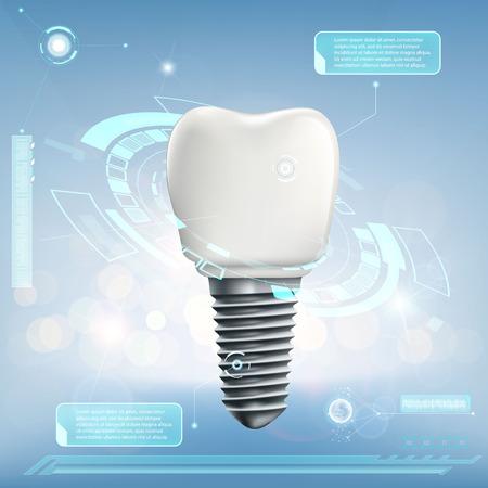 Ilustración de Human dental implant. Futuristic infographics of the tooth. Stock vector illustration. - Imagen libre de derechos