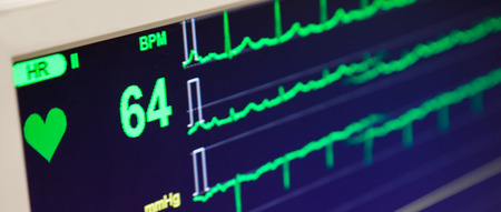 Foto de Heart Beat Rate Monitor - Imagen libre de derechos