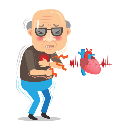 Illustration pour Heart attack symptom . with aching heart holding his chest muscular man with chest pain isolated on white background. cartoon Vector illustrations - image libre de droit
