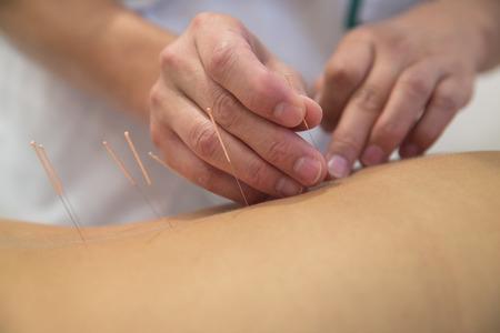 Foto de Acupuncture needles on back of a young woman - Imagen libre de derechos