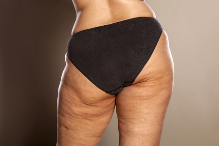 Photo pour Fat female buttocks with cellulite and stretch marks in black panties - image libre de droit