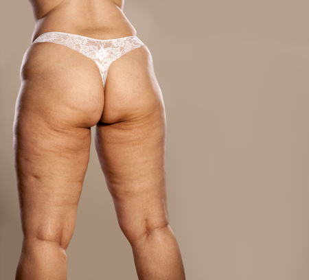 Photo pour Fat female buttocks with cellulite and stretch marks in white thong - image libre de droit