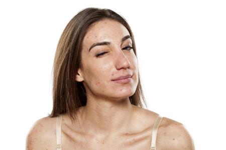 Photo pour skeptical young women with problematic skin - image libre de droit