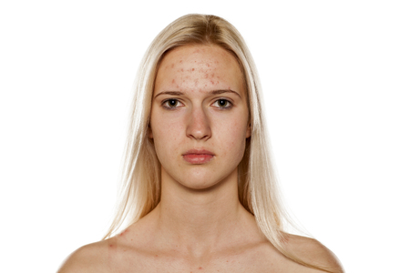 Photo pour Young blond with pimples on her forehead - image libre de droit
