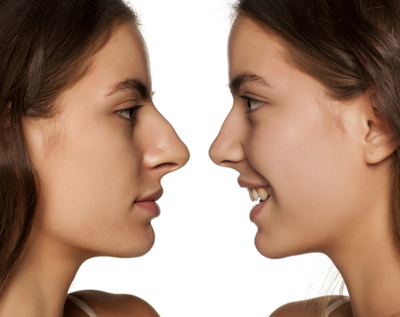Photo pour comparative portrait of the same woman, before and after rhinoplasty - image libre de droit