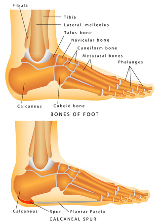 Human Anatomy - Bones of the Foot and Ankle  Heel spur - a bony protrusion on the plantar  bottom  surface of the calcaneus