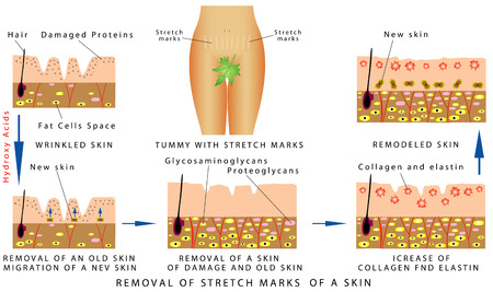 Illustration pour Stretch Marks of a skin. Tummy with stretch marks. Removal of Stretch Marks of a skin on white background - image libre de droit
