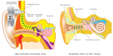 Illustration pour Ear hearing aid.  Members with hearing loss - implantable hearing aids and hearing aids in the ear - image libre de droit