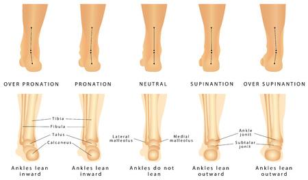 Ilustración de Foot deformation - Valgus and varus defect. Normal human foot and the foot with pronation or flatfoot, with hindfoot deformity - Imagen libre de derechos