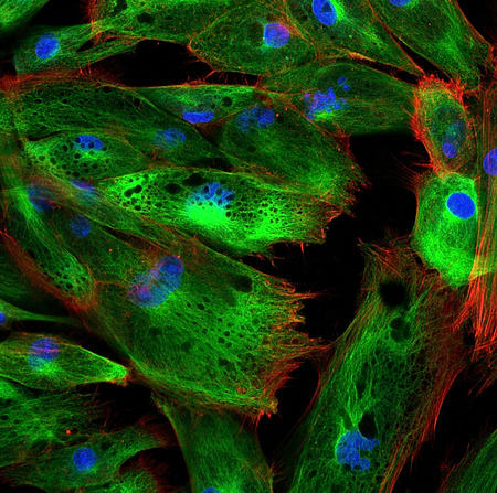Foto per Fibroblasts (skin cells) labeled with fluorescent dyes - Immagine Royalty Free