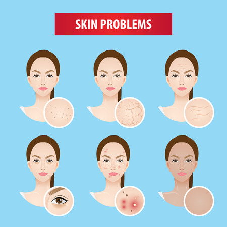 Illustrazione per Problems skin woman vector illustration - Immagini Royalty Free