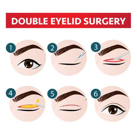 Ilustración de double eyelid surgery step vector illustration - Imagen libre de derechos