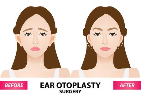 Ilustración de Ear otoplasty surgery before and after vector illustration - Imagen libre de derechos