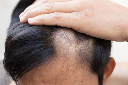 Foto de hair loss - Imagen libre de derechos