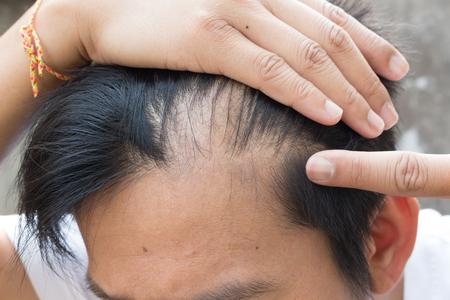 Photo pour hair loss - image libre de droit