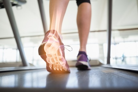 Foto de Digital composite of Highlighted foot bones of jogging woman - Imagen libre de derechos