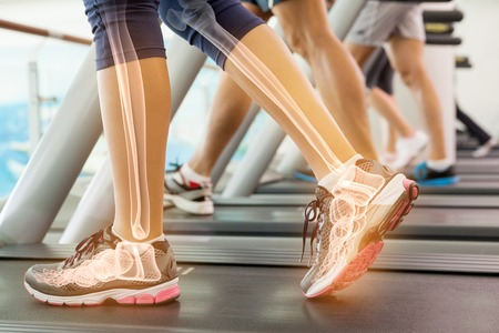 Photo pour Digital composite of Highlighted ankle of woman on treadmill - image libre de droit