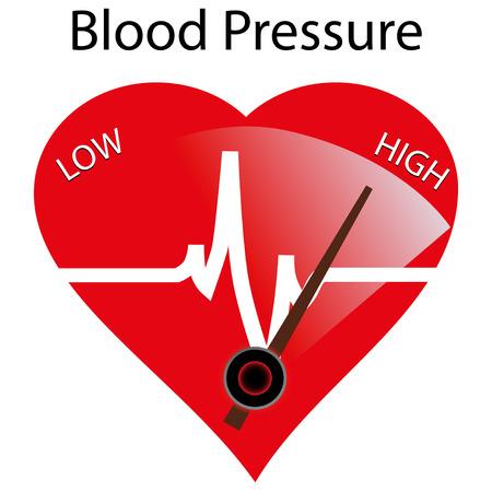 Illustration pour Concept of hypertension, vector illustration - image libre de droit