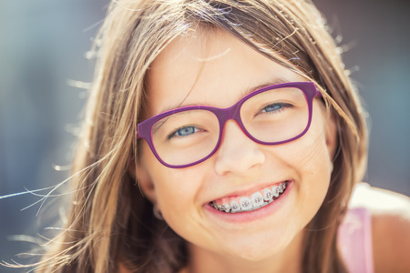 Foto de Happy smiling girl with dental braces and glasses. Young cute caucasian blond girl wearing teeth braces and glasses. - Imagen libre de derechos