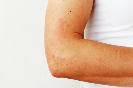 Photo pour Red pustules and vesicles on the skin of the hand as symptoms of photodermatitis. Allergic reaction to sunlight. Allergy - image libre de droit