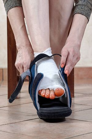 Photo pour Woman wears up the special orthopedic boot on leg with bandage, after trauma or surgery, with iodine spots on the fingers. The result of using tigh shoes, deformity of great toe or first metatarsophageal joint, hallux valgus or bunion. Copy space. - image libre de droit