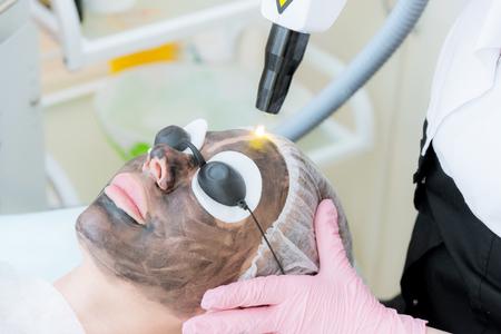 Foto de Close-up carbon face peeling procedure. Laser pulses clean skin of the face. Hardware cosmetology treatment. Process of photothermolysis, warming the skin, laser carbon peeling. Facial skin rejuvenation. - Imagen libre de derechos
