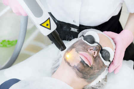 Photo for Close-up carbon face peeling procedure. Laser pulses clean skin of the face. Hardware cosmetology treatment. Process of photothermolysis, warming the skin, laser carbon peeling. Facial skin rejuvenation. - Royalty Free Image