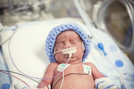 Foto de Newborn premature baby in the NICU intensive care - Imagen libre de derechos