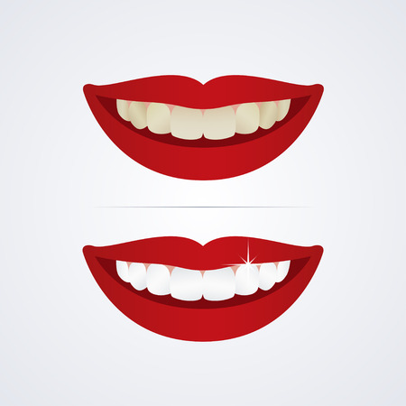 Illustration pour Whitening teeth illustration isolated on white background - image libre de droit