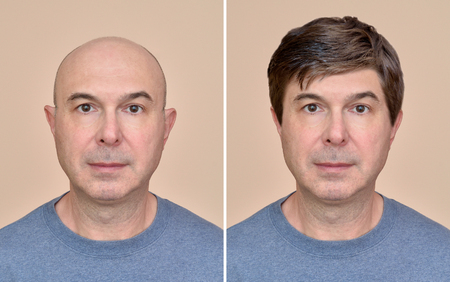Photo for Two portraits of a same middle aged bald man before and after wearing wig - Royalty Free Image