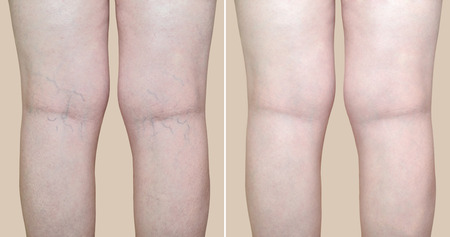 Foto de Legs of a woman with varicose veins and capillaries before and after medical treatment - Imagen libre de derechos