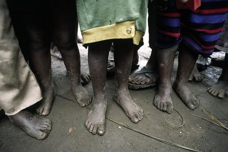 Foto de Poor African children waiting for food barefoot - Imagen libre de derechos